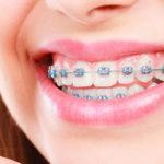 Yetişkinler diş tellerini ne kadar süre ile kullanmalı?